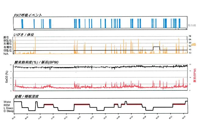 睡眠時無呼吸症候群 検査結果